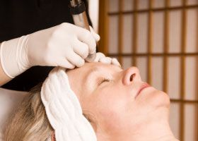 Esthetician performing electrolysis